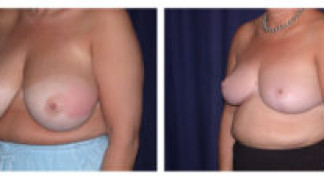 Before and After - Breast Reduction 13 - Profile