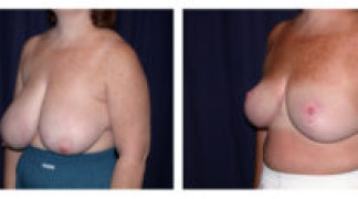 Before and After - Breast Reduction 14 - Profile