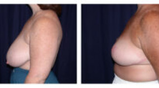 Before and After - Breast Reduction 14 - Side View