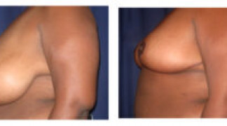 Before and After - Breast Reduction 16 - Profile