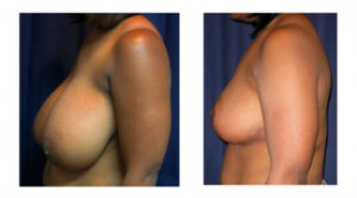 Before and After - Breast Reduction 17 - Profile