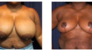 Before and After - Breast Reduction 18 - Front View