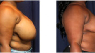 Before and After - Breast Reduction 18 - Profile