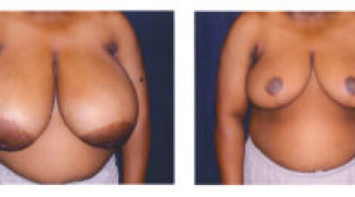 Before and After - Breast Reduction (Gigantomastia) 1 - Front View