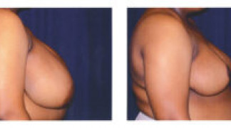 Before and After - Breast Reduction (Gigantomastia) 1 - Side View