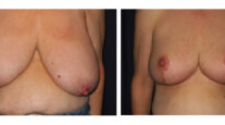 Before and After - Breast Reduction 19 - Front View