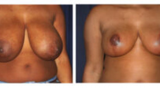 Before and After - Breast Reduction 20 - Front View