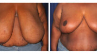 Before and After - Breast Reduction (Gigantomastia) 2 - Front View