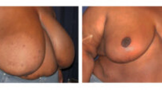 Before and After - Breast Reduction (Gigantomastia) 2 - Profile