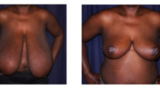 Before and After - Breast Reduction (Gigantomastia) 3 - Front View