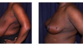 Before and After - Breast Reduction (Gigantomastia) 3 - Profile