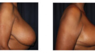 Before and After - Breast Reduction 22 - Profile