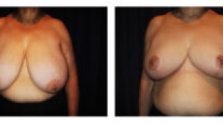 Before and After - Breast Reduction 23 - Front View