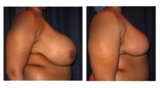Before and After - Breast Reduction 25 - Profile