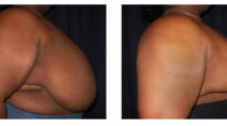 Before and After - Breast Reduction (Gigantomastia) 4 - Profile