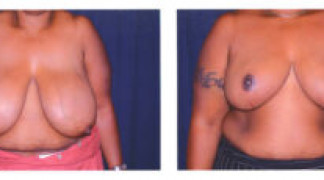 Before and After - Breast Reduction 1 - Front View