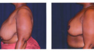 Before and After - Breast Reduction 1 - Side View