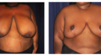 Before and After - Breast Reduction 27 - Front View