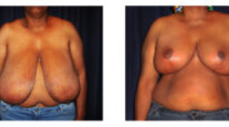 Before and After - Breast Reduction (Gigantomastia) 5 - Front View