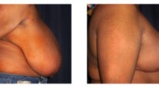 Before and After - Breast Reduction (Gigantomastia) 5 - Profile