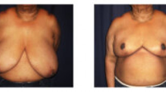 Before and After - Breast Reduction (Gigantomastia) 6 - Front View