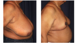 Before and After - Breast Reduction (Gigantomastia) 6 - Profile