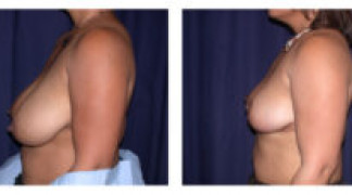 Before and After - Breast Reduction 4 - Side View