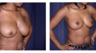 Before and After - Breast Reduction 5 - Profile