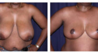 Before and After - Breast Reduction 6 - Front View