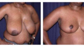 Before and After - Breast Reduction 6 - Profile