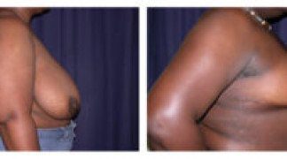 Before and After - Breast Reduction 7 - Side View