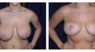 Before and After - Breast Reduction 8 - Front View