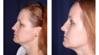 Before and After - Endoscopic Browlift 1 - Side View