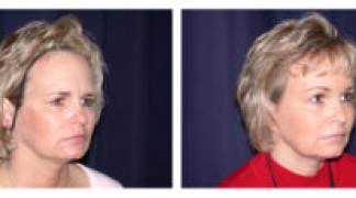 Before and After - Endoscopic Browlift 2 - Front View
