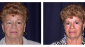Before and After - Eyelid Ptosis 1 - Front View