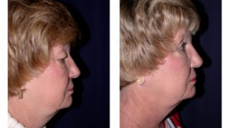 Before and After - Eyelid Ptosis 2 - Side View