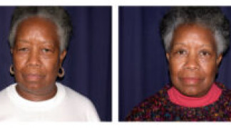 Before and After - Eyelid Ptosis 3 - Front View