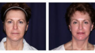 Before and After - Facial Rejuvenation 1 - Front View