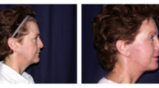 Before and After - Facial Rejuvenation 1 - Side View