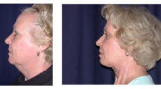 Before and After - Facial Rejuvenation 2 - Side View