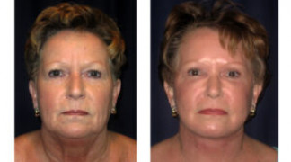 Before and After - Facial Rejuvenation 4 - Front View