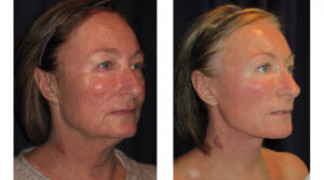 Before and After - Facial Rejuvenation 5 - Profile View