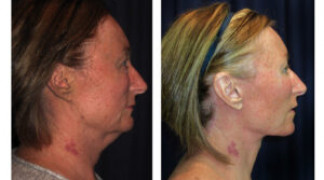 Before and After - Facial Rejuvenation 5 - Side View