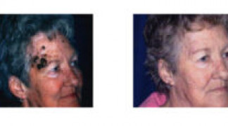 Before and After - Laser of Seborreic Keratosis - Profile