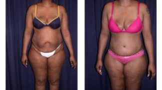 Lipo-Abdominoplasty (Cosmetic) 4 - Front View