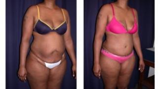 Lipo-Abdominoplasty (Cosmetic) 4 - Profile