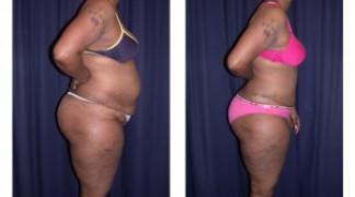 Lipo-Abdominoplasty (Cosmetic) 4 - Side View - Standing