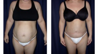 Lipo-Abdominoplasty (Girth) 4 - Front View
