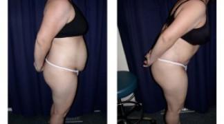 Lipo-Abdominoplasty (Girth) 4 - Side View - Bending