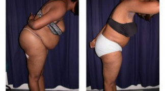 Lipo-Abdominoplasty (Girth) 5 - Side View - Bending